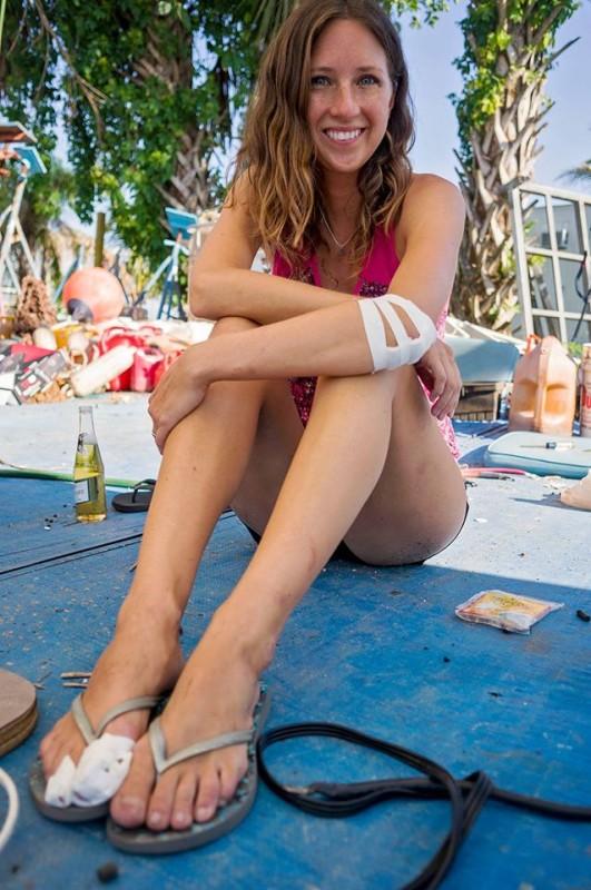 Jessica bandaged up